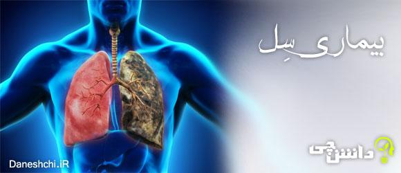 بیماری سل (TB)