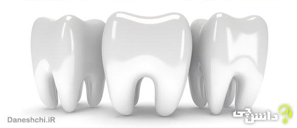 مینای دندان
